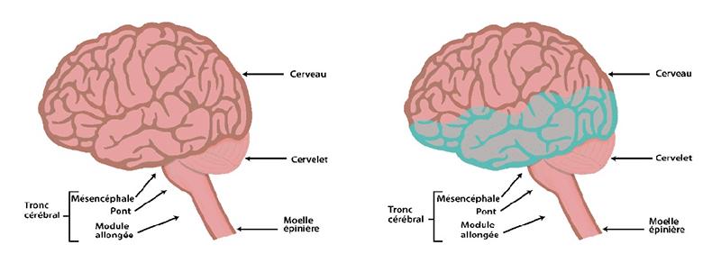 Hydrocéphalie